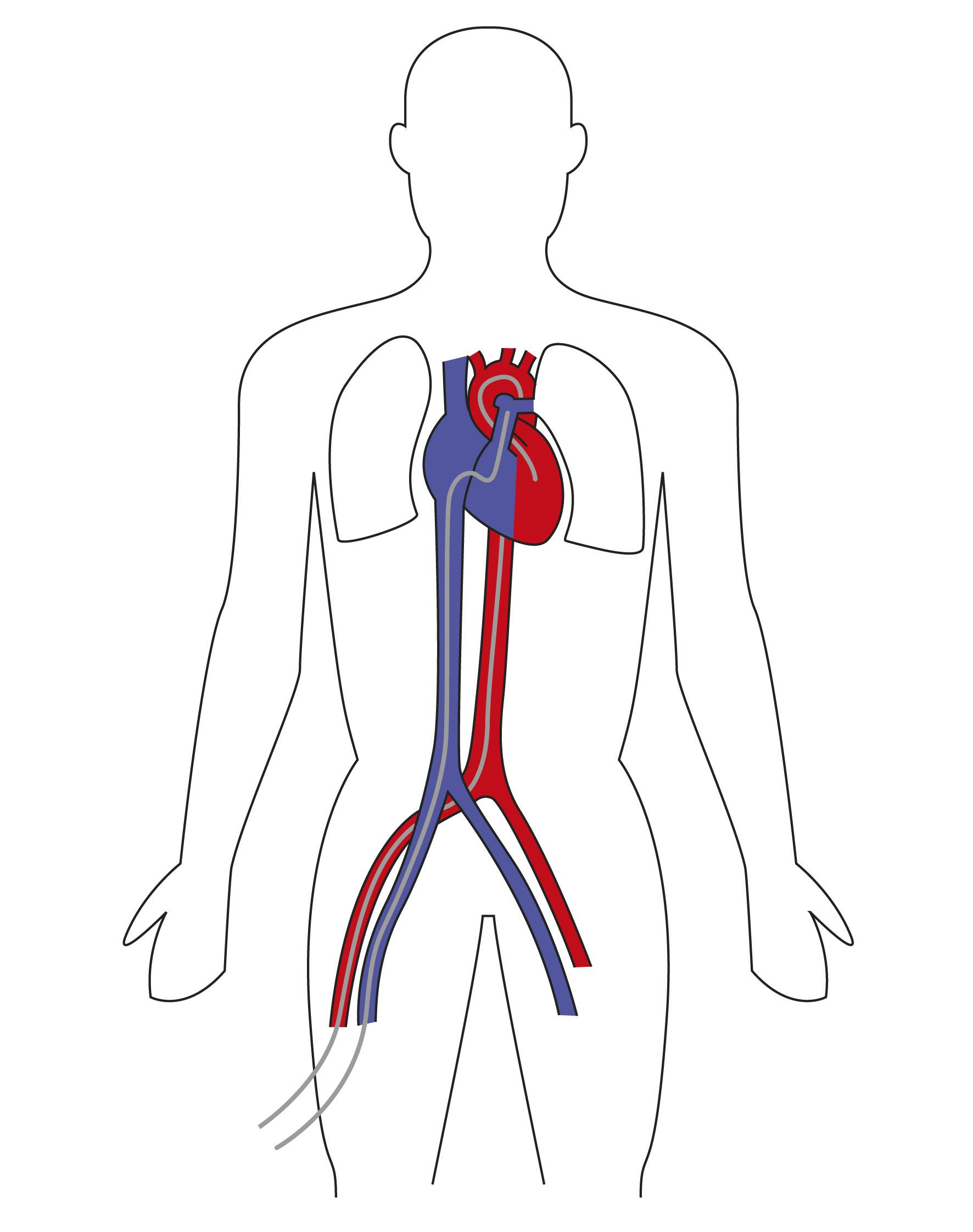 Herzkatheter